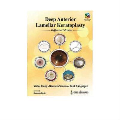 Deep Anterior Lamellar Keratoplasty Different Strokes 1st Edition by Vishal Jhanji