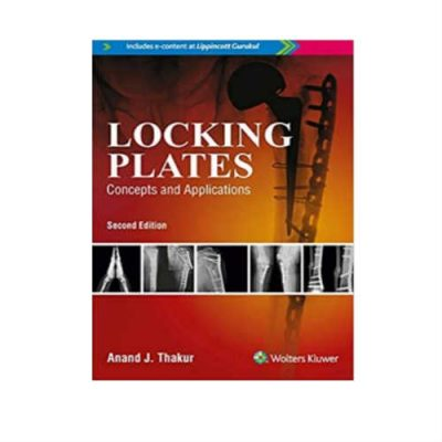 Locking Plates Concepts And Applications 2nd Edition by Anand J Thakur