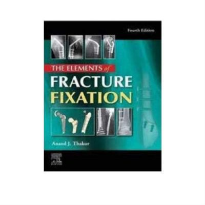 Elements Of Fracture Fixation 4th Edition by Anand J thakur
