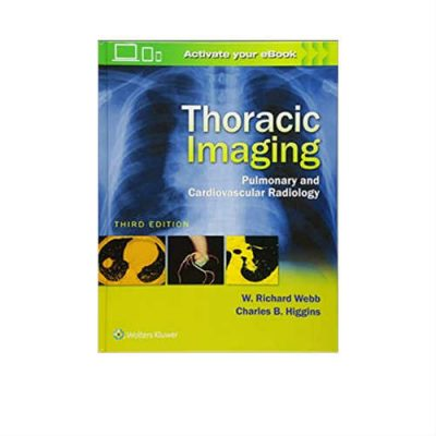 Thoracic Imaging Pulmonary And Cardiovascular Radiology 3rd Edition by Richard Webb