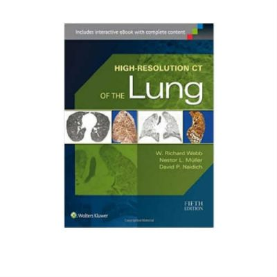 High Resolution CT Of The Lung 5th Edition by Richard Webb