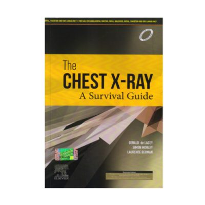 Chest X-Ray A Survival Guide (2020) by Gerald de Lacey