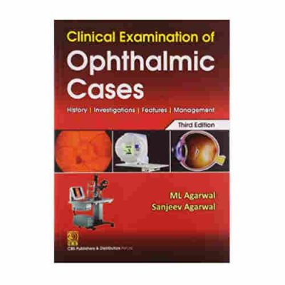 Clinical Examination of Ophthalmic Cases By ML Agarwal, Sanjeev Agarwal