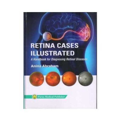 Retina Cases Illustrated 2019Handbook For Diagnosing Retinal Diseases1st edition by Anina Abraham