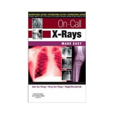 On Call X-Rays Made Easy 2010International Edition1st edition by Iain Au-Yong