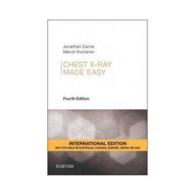 Chest X-Ray Made Easy 42015International Edition4th edition by Jonathan Corne
