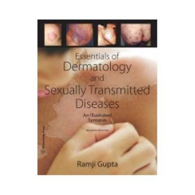 Essentials Of Dermatology And Sexually Transmitted Disease 2018An Illustrated Synopsis2nd edition by Ramji Gupta