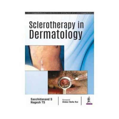 Sclerotherapy In Dermatology 1st edition by Sacchidanand S
