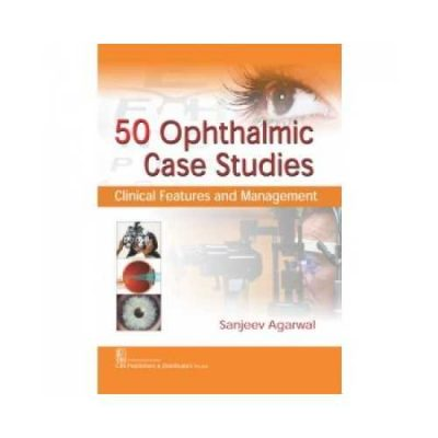 Ophthalmic Case Studies 2017Clinical Features And Management1st edition by Sanjeev Agarwal