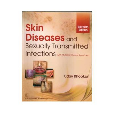 Skin Disease & Sexually Transmitted Infections 72019With Multiple Choice Questions7th edition by Uday Khopkar