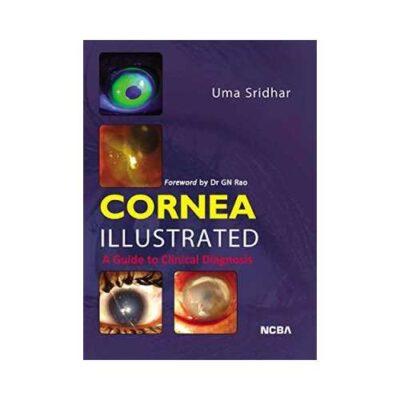Cornea Illustrated A Guide To Clinical Diagnosis 1st edition by Uma Sridhar