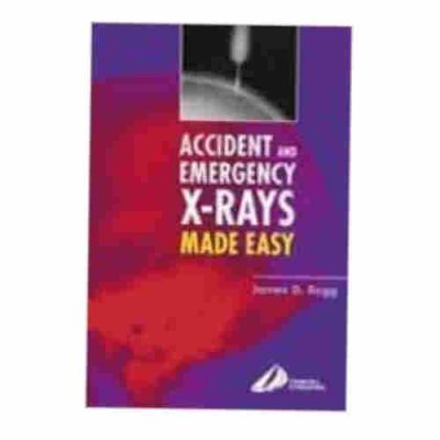 Accident & Emergency X-Rays Made Easy By James D. Begg