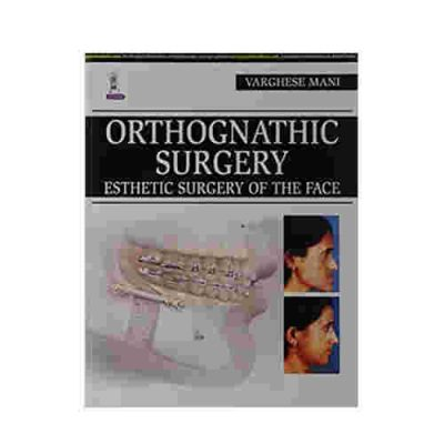 Orthognathic Surgery Esthetic Surgery Of The Face By Varghese Mani