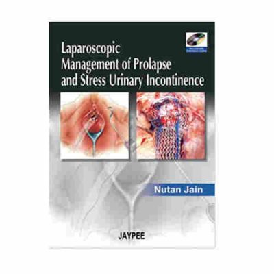 Laparoscopic Management of Prolapse and Stress Urinary incontinence with 2 DVD-ROMs By Nutan Jain